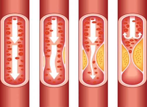 Cómo limpiar nuestras arterias con remedios naturales