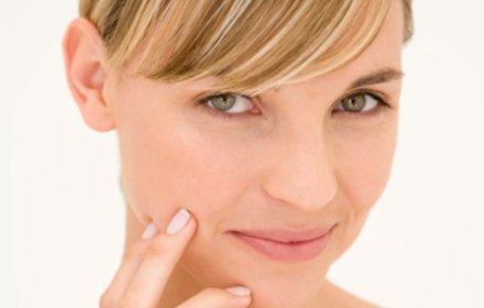 4 remedios para suavizar los poros dilatados