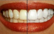 remedios-caseros-para-luchar-contra-los-dientes-amarillos_t8h45