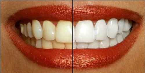 Remedios caseros para blanquear dientes amarillos