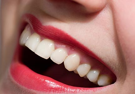 remedios-naturales-contra-la-placa-dental_r5u7c