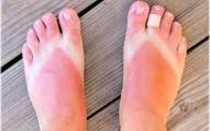 remedios-naturales-contra-las-quemaduras-solares_arupo